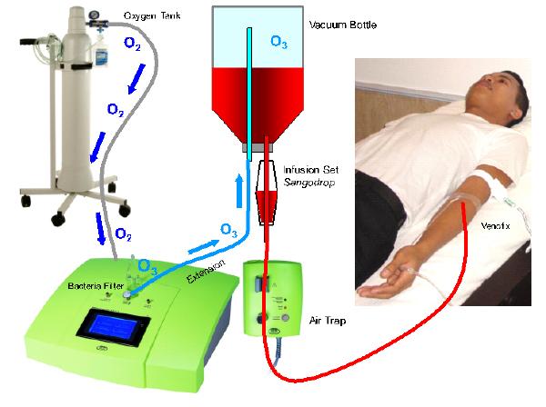 Amazing Benefits Of Ozone Therapy Regenerative 21